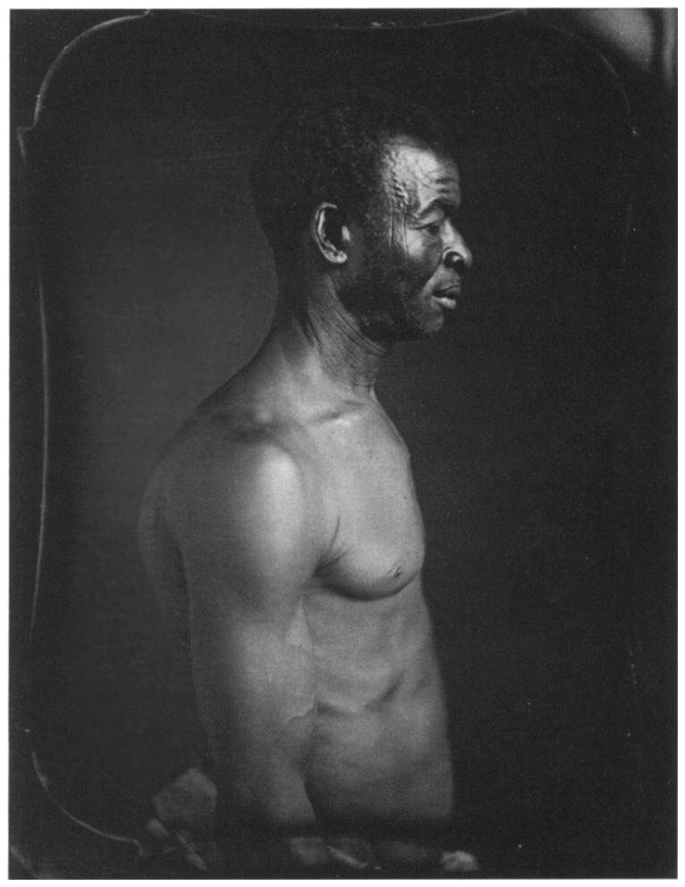 Agassiz commissioned this daguerreotype of an enslaved man named Jack, who was born on the Coast of Guinea and lived on a plantation in Columbia, South Carolina. PUBLIC DOMAIN