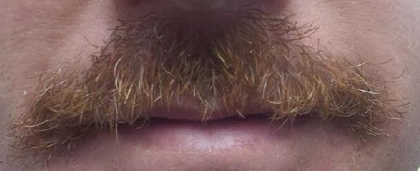 Hellbent Logan Movember